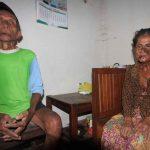 Derita Herpes, Nenek Pemegang BPJS di Kota Probolinggo Masih Beli Obat Sendiri