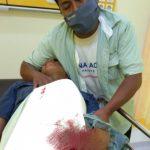 Petasan Meledak, Perangkat Desa di Pasuruan Terluka
