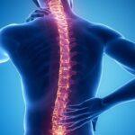 RSUD Menyapa: Degenerasi Tulang Belakang, Apa Penyebab dan Solusinya