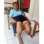 30 tahun, Perempuan di Pamekasan Menderita Kaki Gajah
